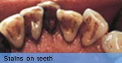 Stains on teeth