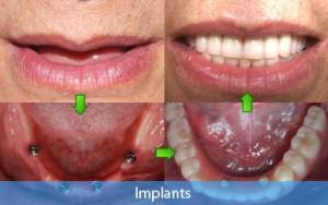 Dental implants - before after