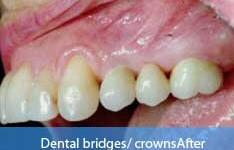 After dental bridge treatment