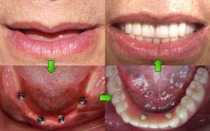 Dental Implants - Before After Images