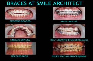 Orthodontic Braces Treatment At Smile Architect