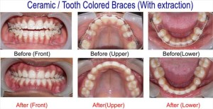 Ceramic Braces Treatment - Before after