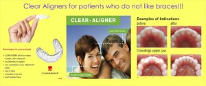 Clear Aligners Before- After Treatment Images