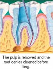 Tooth Decay Treatment Bangalore